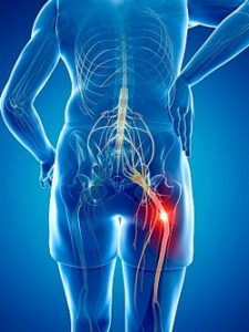 sciatica-treatment-san-dieg