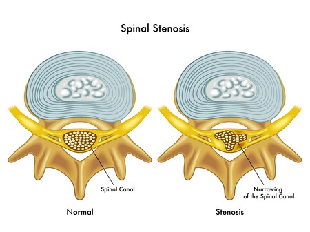 spinal-stenosis-spine-narrow