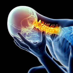 Headache starting in neck