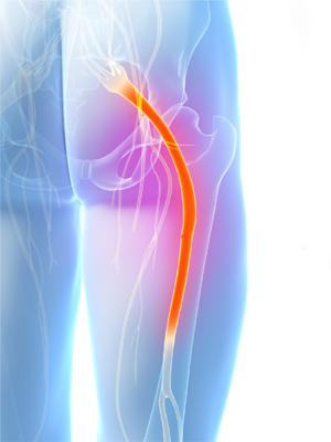 Sciatica Treatment San Diego CA