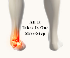 sprained ankle treatment San Diego