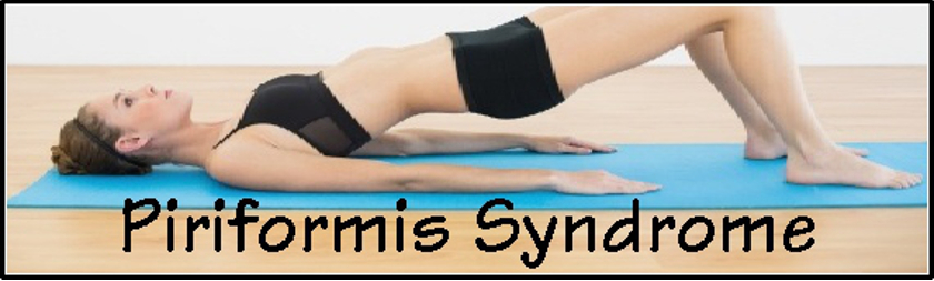 Piriformis Syndrome – Simple Solutions For a Pain in the Butt