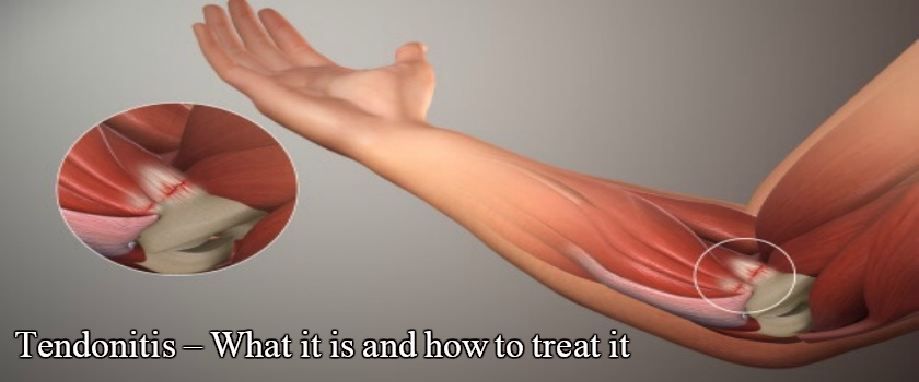 Tendonitis – What It Is And What To Do To Resolve It?