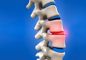 Herniated Disc Discussion