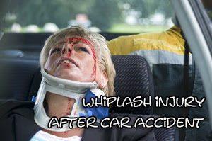 Whiplash Treatment